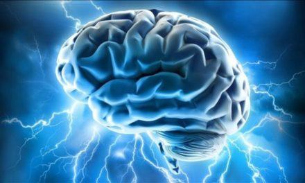 Una scossa al cervello